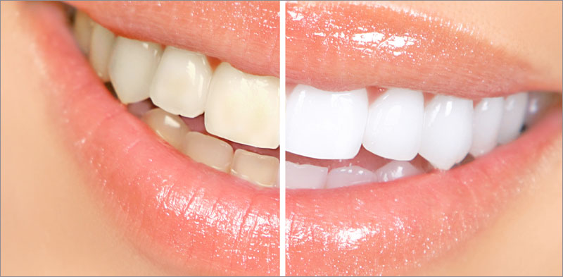 Teeth Whitening And Bleeching