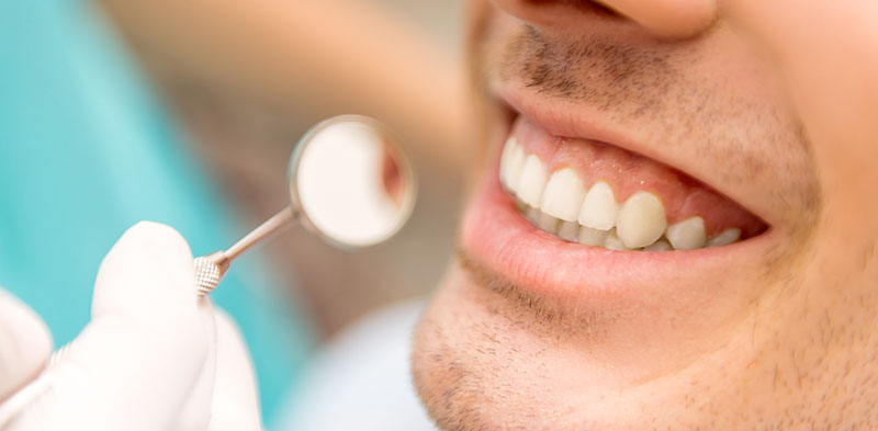 Professional Teeth Cleaning
